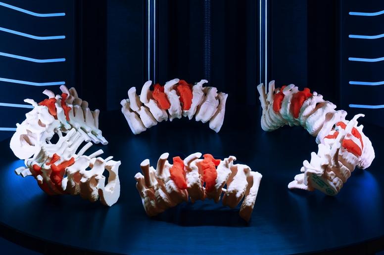 Stratasys J5 MediJet 3D nyomtatott csigolyák